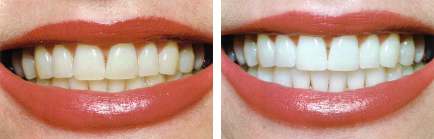 before after teeth whitening laredo tx