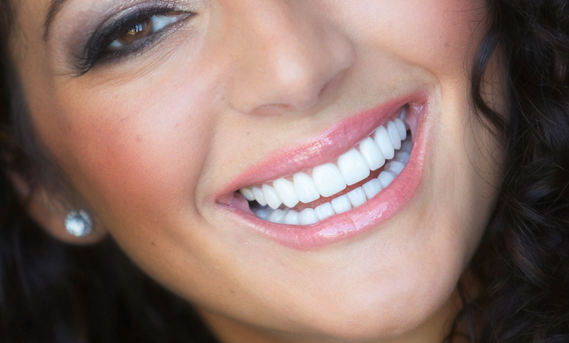 teeth whitening laredo tx